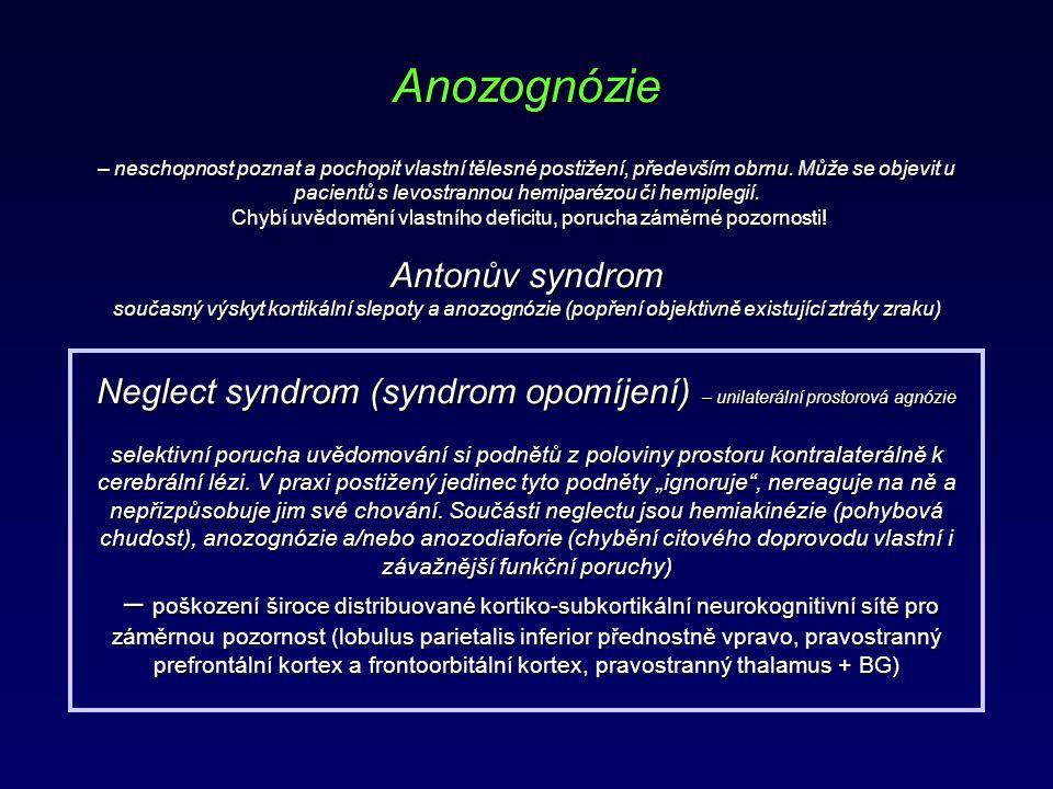 Anozognózie – neschopnost poznat a pochopit vlastní tělesné postižení, především obrnu. Může se objevit u pacientů s levostrannou hemiparézou či hemip