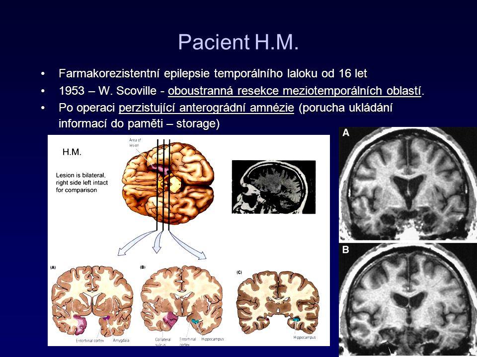 Temporal lobe epilepsy: Gastaut-Geschwind syndrome (a syndrome of sensory-limbic hyperconnection) Hypergrafie (nebo kompulzivní malování – V.