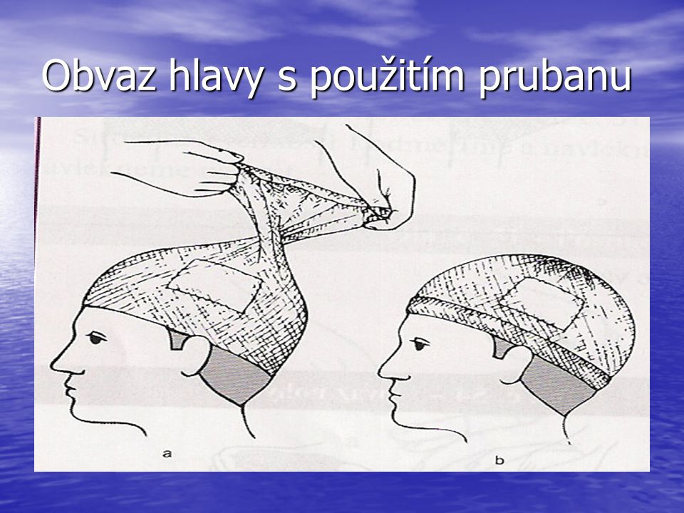 Obvaz hlavy s použitím prubanu