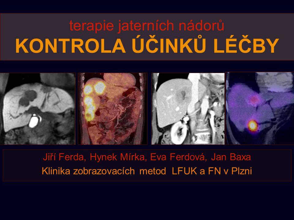 terapie jaterních nádorů KONTROLA ÚČINKŮ LÉČBY Jiří Ferda, Hynek Mírka, Eva Ferdová, Jan Baxa Klinika zobrazovacích metod LFUK a FN v Plzni