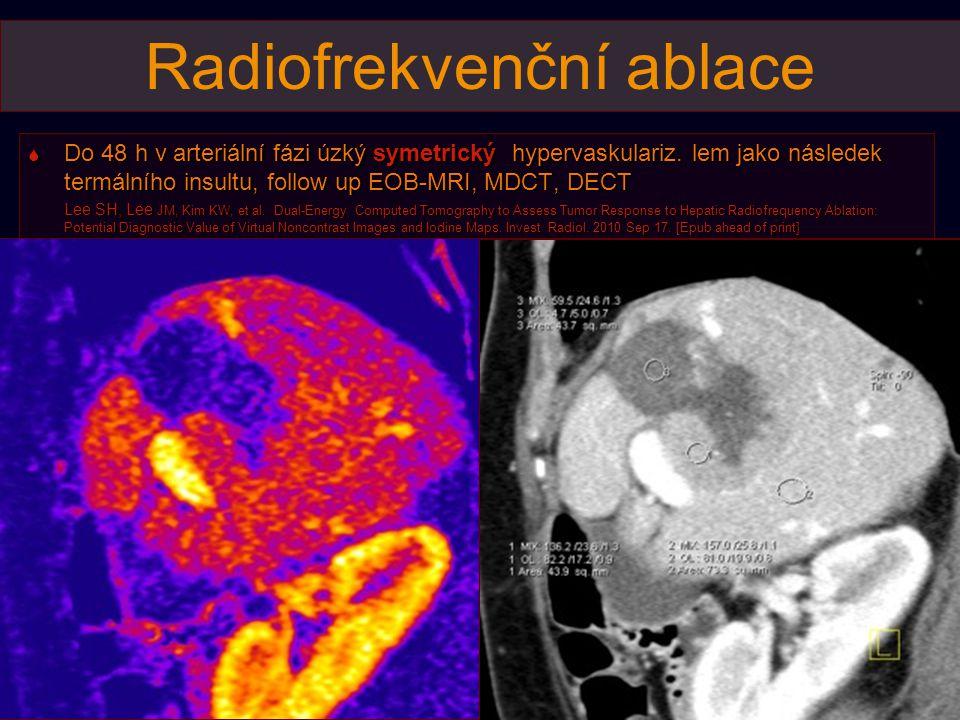 Radiofrekvenční ablace  Do 48 h v arteriální fázi úzký symetrický hypervaskulariz. lem jako následek termálního insultu, follow up EOB-MRI, MDCT, DEC