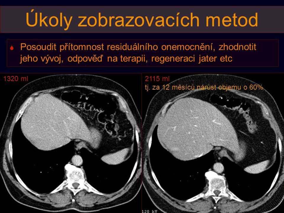 Úkoly zobrazovacích metod  Posoudit přítomnost residuálního onemocnění, zhodnotit jeho vývoj, odpověď na terapii, regeneraci jater etc 1320 ml2115 ml