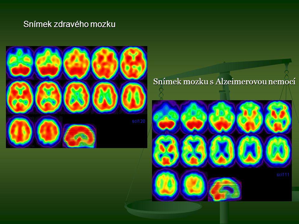 Snímek zdravého mozku Snímek mozku s Alzeimerovou nemocí