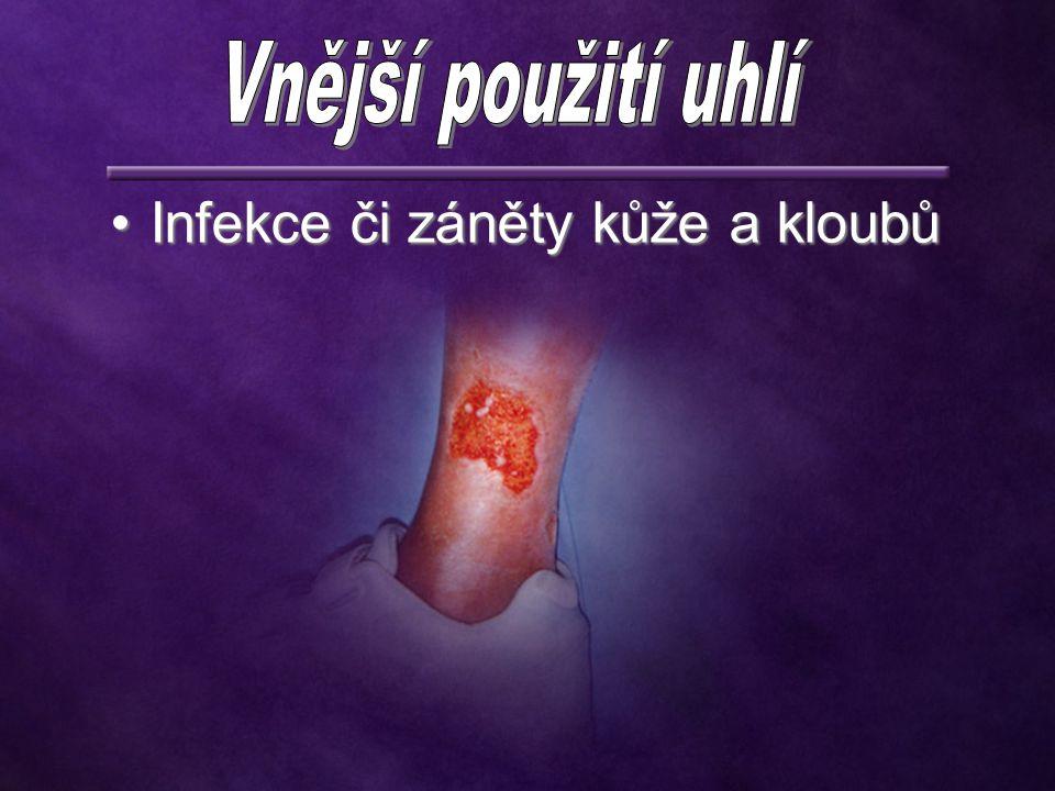Infekce či záněty kůže a kloubůInfekce či záněty kůže a kloubů