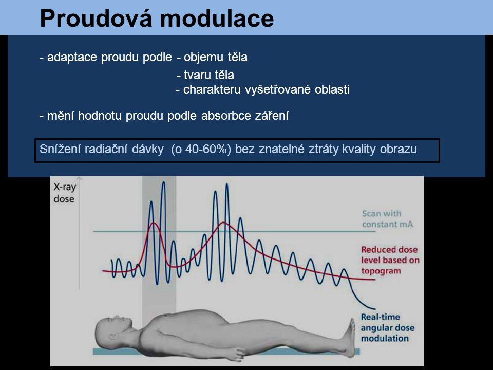 Proudová modulace - adaptace proudu podle - objemu těla - tvaru těla - charakteru vyšetřované oblasti - mění hodnotu proudu podle absorbce záření Sníž
