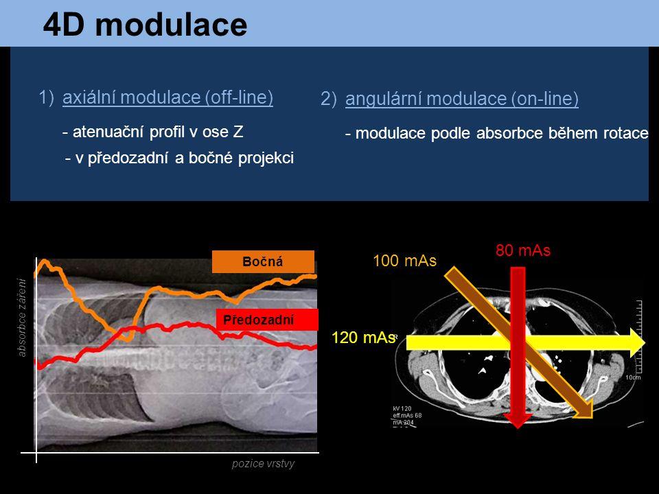 1)axiální modulace (off-line) - atenuační profil v ose Z - v předozadní a bočné projekci 2)angulární modulace (on-line) - modulace podle absorbce běhe