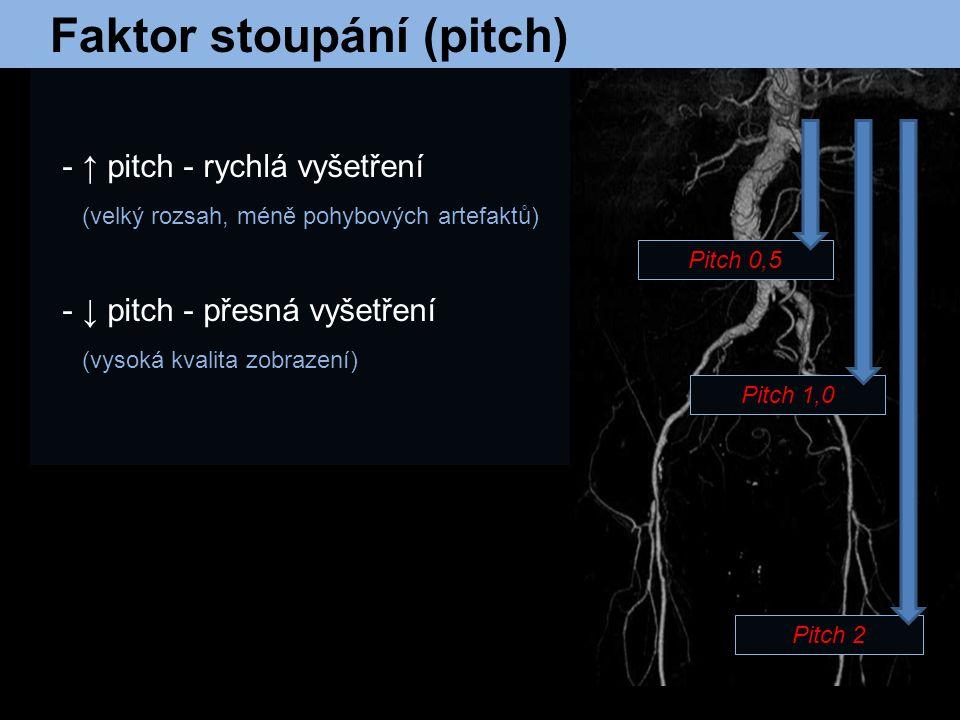 Faktor stoupání (pitch) - ↑ pitch - rychlá vyšetření (velký rozsah, méně pohybových artefaktů) - ↓ pitch - přesná vyšetření (vysoká kvalita zobrazení)