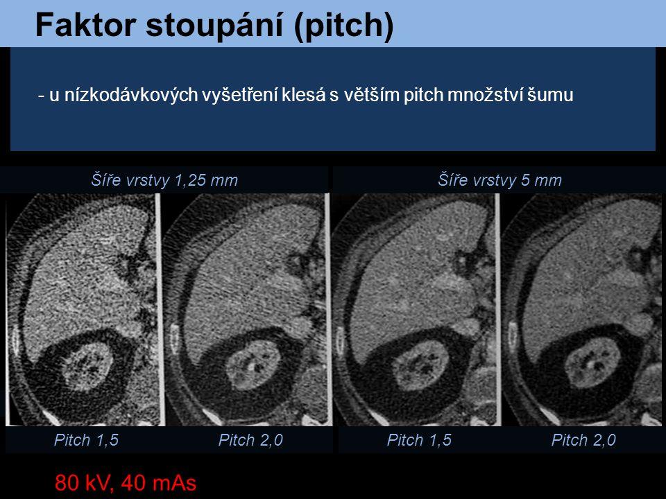 Faktor stoupání (pitch) Pitch 1,5 Pitch 2,0 Šíře vrstvy 1,25 mmŠíře vrstvy 5 mm Pitch 1,5Pitch 2,0 - u nízkodávkových vyšetření klesá s větším pitch m