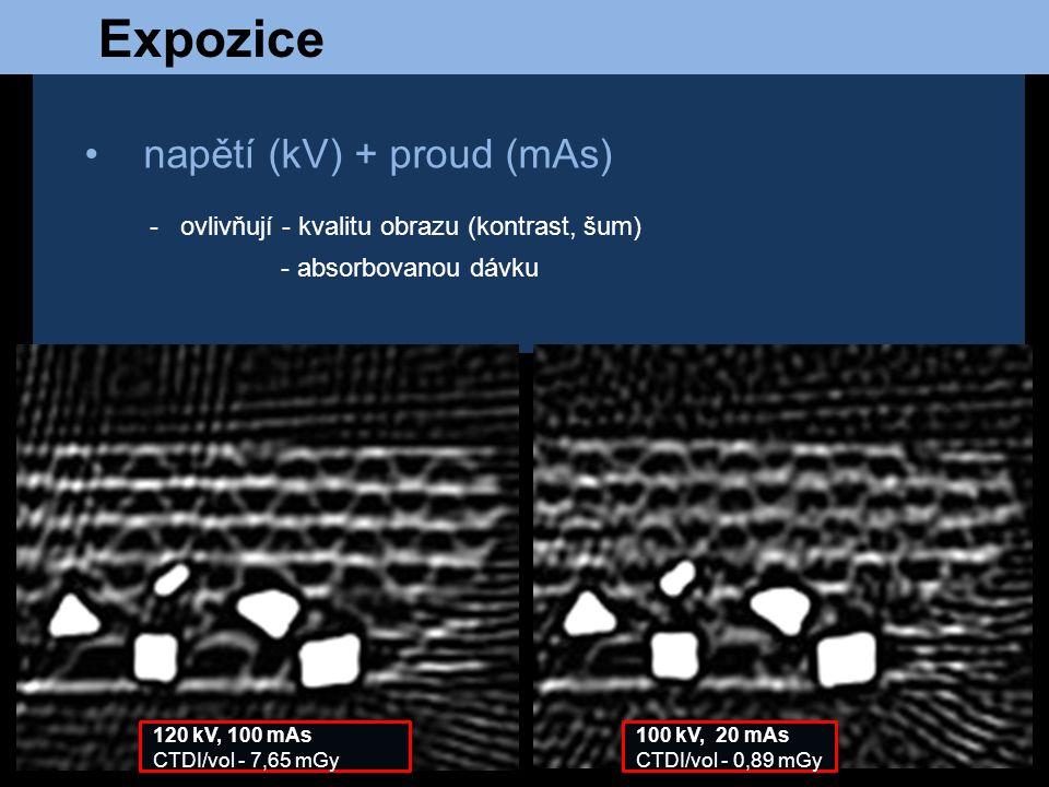 Expozice napětí (kV) + proud (mAs) - ovlivňují - kvalitu obrazu (kontrast, šum) - absorbovanou dávku 120 kV, 100 mAs CTDI/vol - 7,65 mGy 100 kV, 20 mA