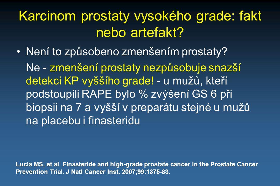 Karcinom prostaty vysokého grade: fakt nebo artefakt? Není to způsobeno zmenšením prostaty? Ne - zmenšení prostaty nezpůsobuje snazší detekci KP vyšší