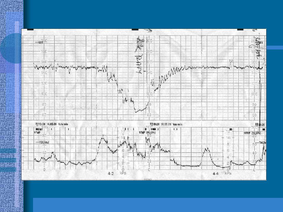 Hypoxemie, hypoxie a asfyxie Různý stupeň závažnosti poklesu kyslíkové saturace arteriální krve
