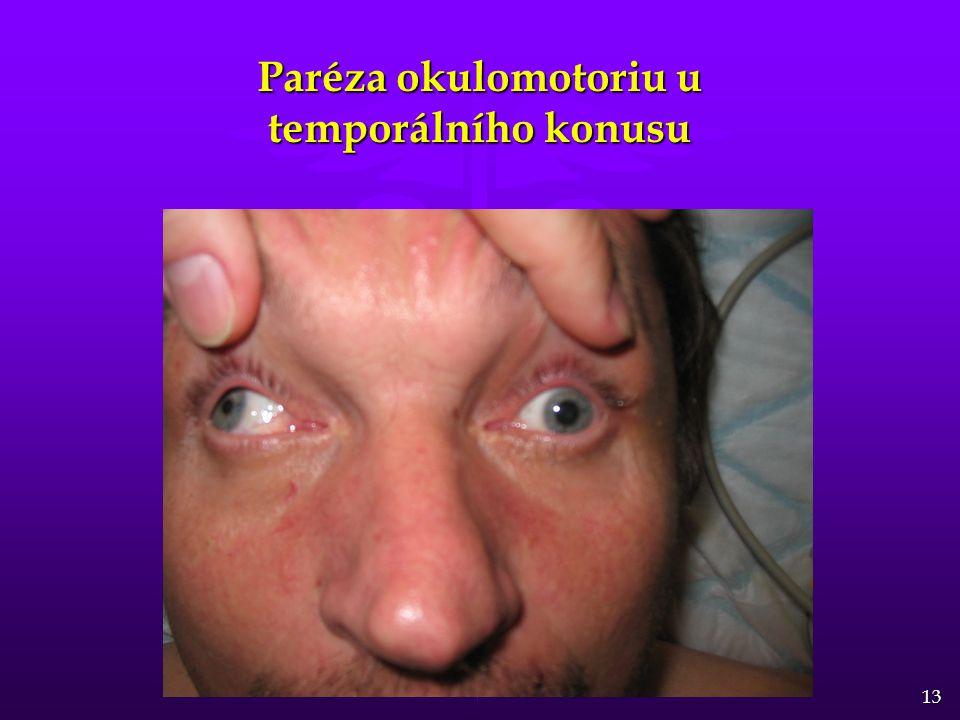 13 Paréza okulomotoriu u temporálního konusu