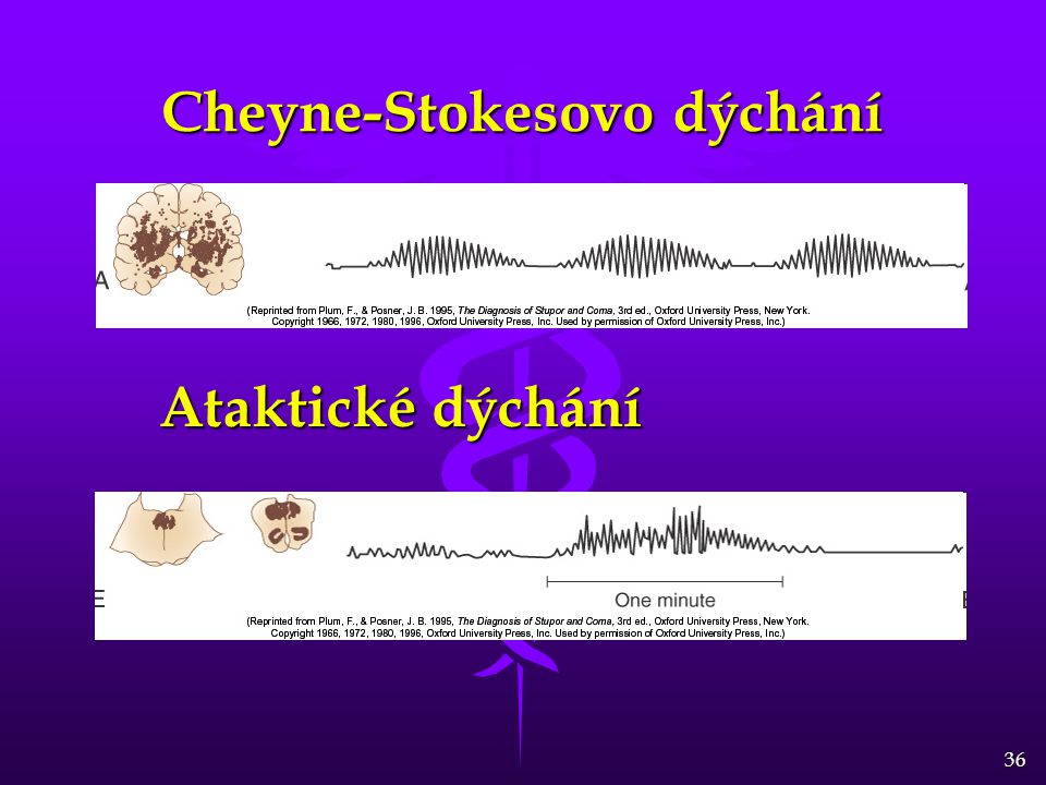 36 Cheyne-Stokesovo dýchání Ataktické dýchání
