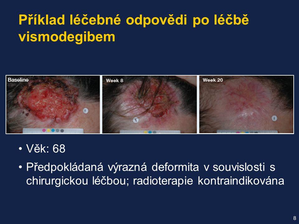Věk: 68 Předpokládaná výrazná deformita v souvislosti s chirurgickou léčbou; radioterapie kontraindikována Příklad léčebné odpovědi po léčbě vismodegibem 8