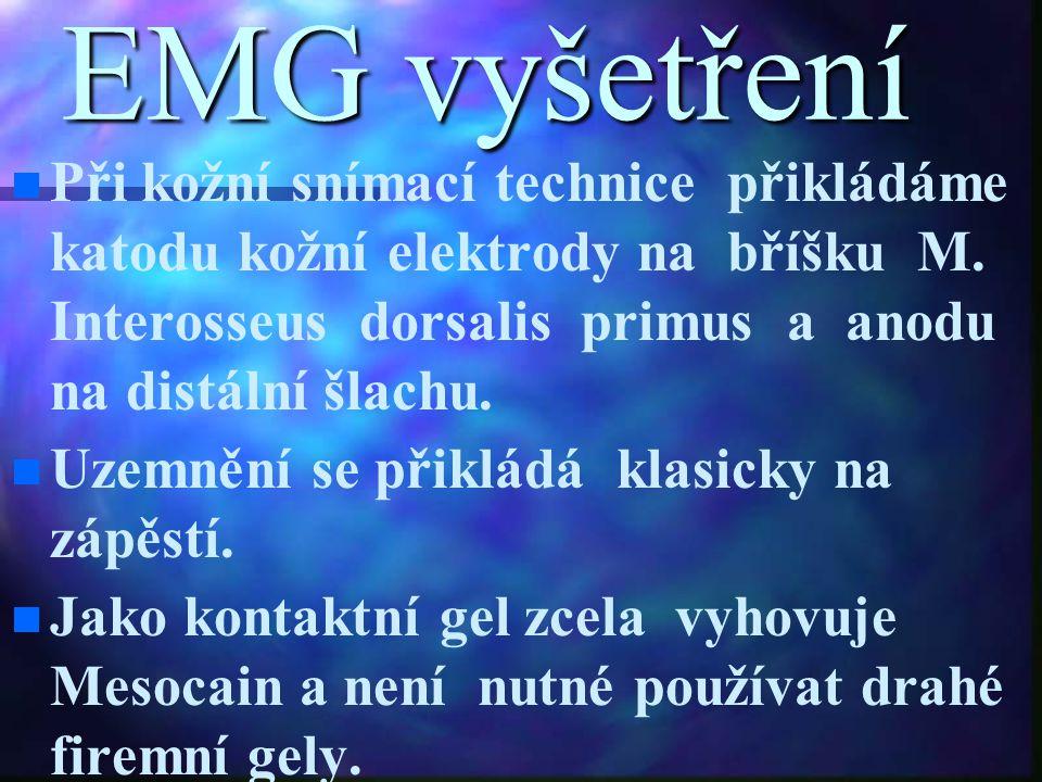 EMG vyšetření n n Při kožní snímací technice přikládáme katodu kožní elektrody na bříšku M. Interosseus dorsalis primus a anodu na distální šlachu. n