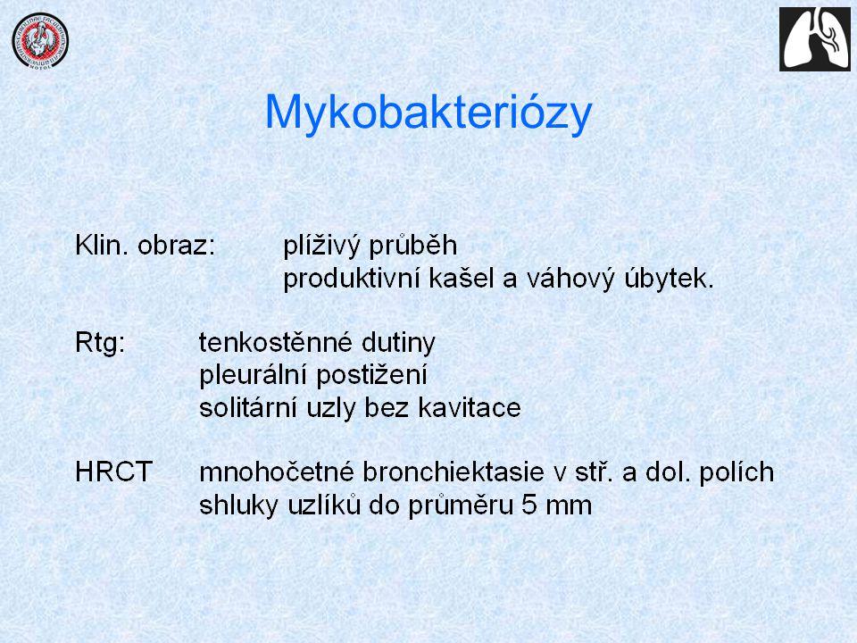 Mykobakteriózy