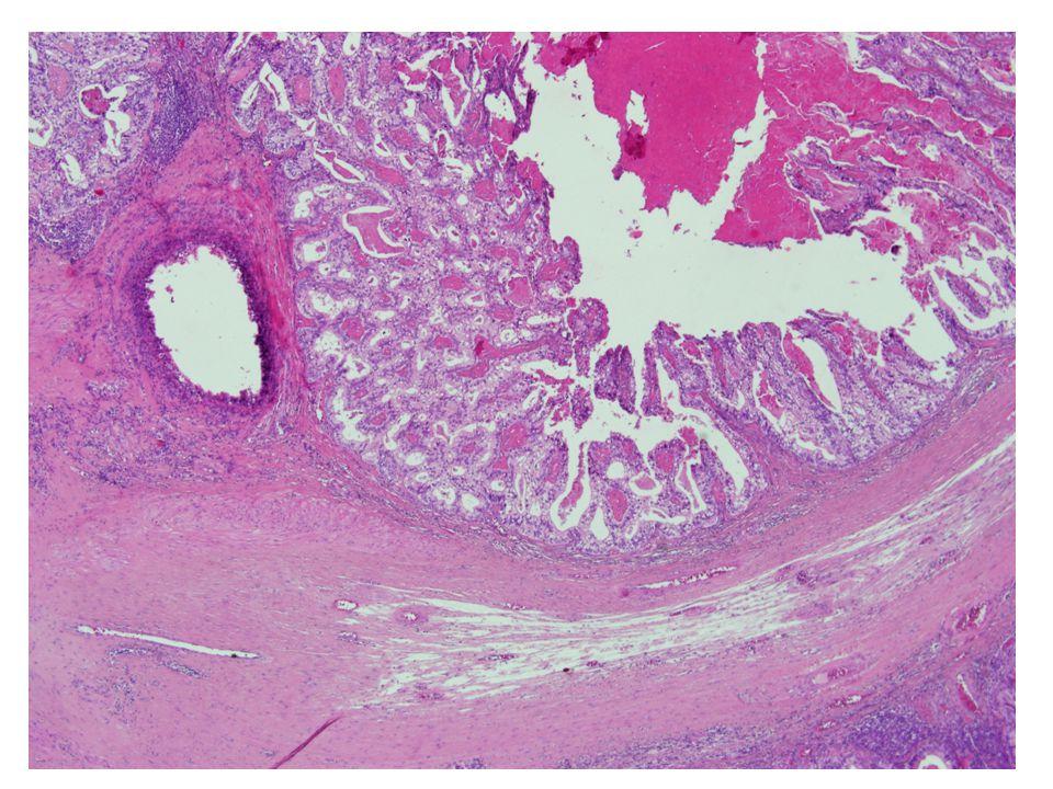 Glandulární-alveolární typ, endodermální sinusový typ, papilární a myxoidní typ YST