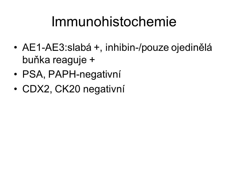 Immunohistochemie AE1-AE3:slabá +, inhibin-/pouze ojedinělá buňka reaguje + PSA, PAPH-negativní CDX2, CK20 negativní