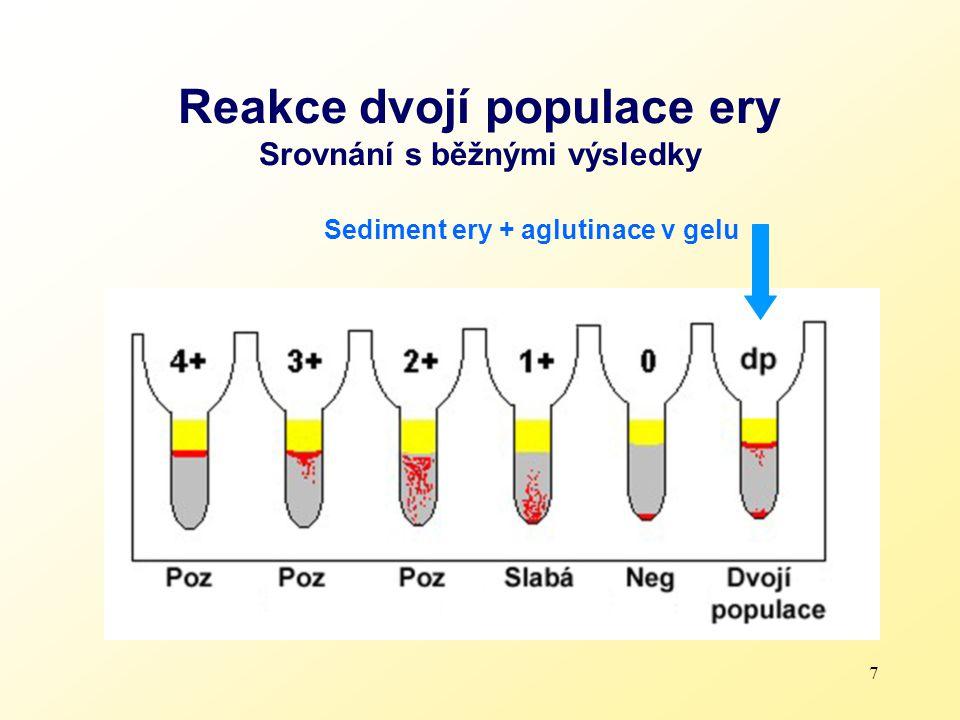 7 Reakce dvojí populace ery Srovnání s běžnými výsledky Sediment ery + aglutinace v gelu