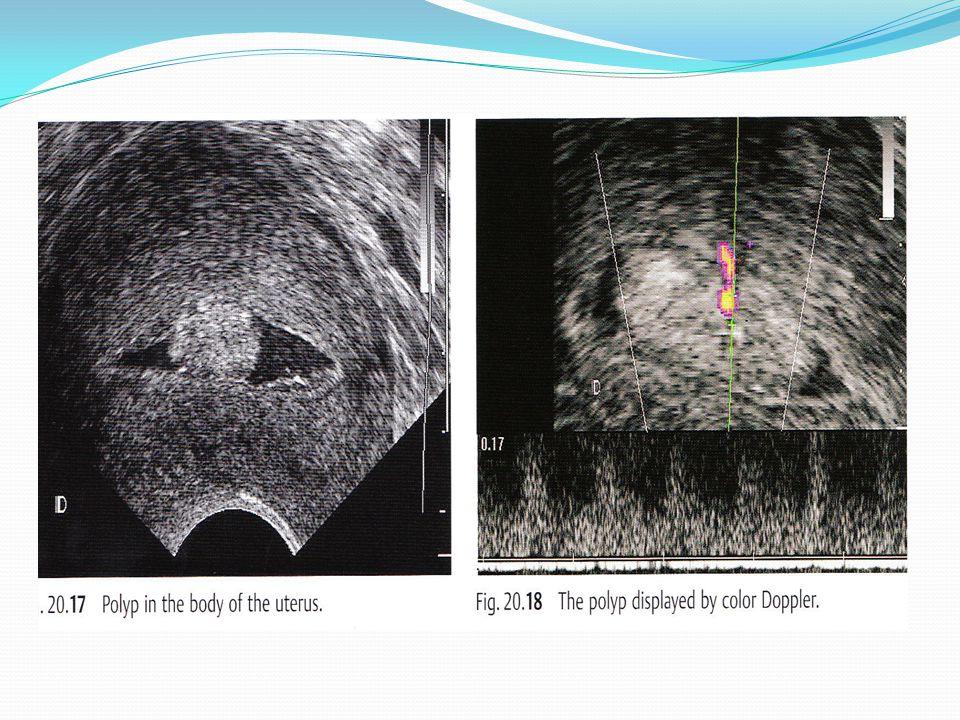 Datování ultrazvuku 6 týdnů